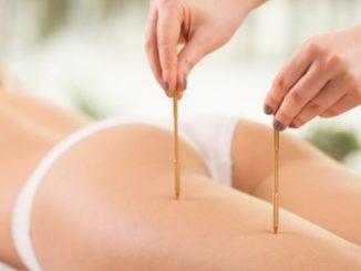 dimagrire agopuntura